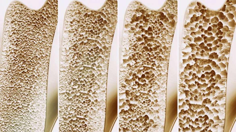 Osteoporosis, la enfermedad silenciosa que nos llegará a todos